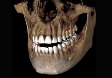 Tomografia 3D - najpopularniejszy aparat na świecie teraz do Państwa dyspozycji